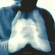 Jens Guetschow Side Effect Remixes